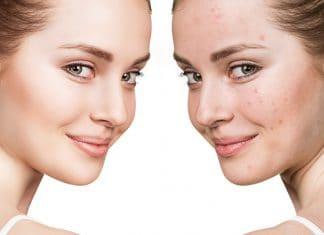 Prevent Hormonal Acne